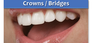 crowns and bridges dentist