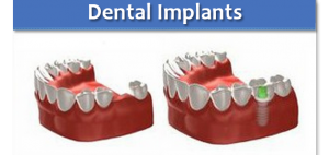 dental implants sussex