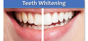 Teeth Whitening in Horsham
