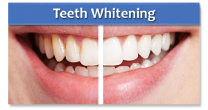 Teeth whitening Sussex