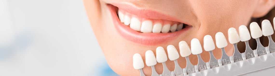 Teeth whitening instructions -woman with white teeth