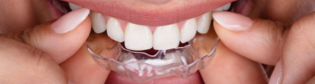Cosmetic dentistry Horsham - woman putting transparent aligner in top teeth