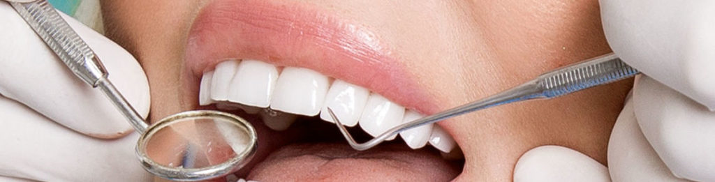 Dental Veneers Horsham - Young beautiful woman with beautiful white teeth sitting on a dental chair.